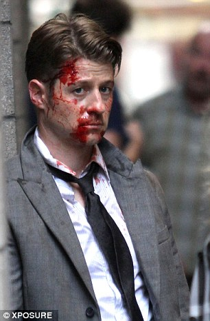 Gory realism:Making the injuries seem even more realistic, the makeup team stepped in and added more blood as filming went along to show the wounds were bleeding over time