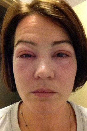 The glue stuck her eyelids together and she was forced to prize them open with tweezers, causing them to sting and swell