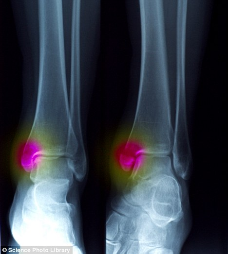 Unsteady on your feet? A serious ankle sprain or fracture makes you prone to arthritis