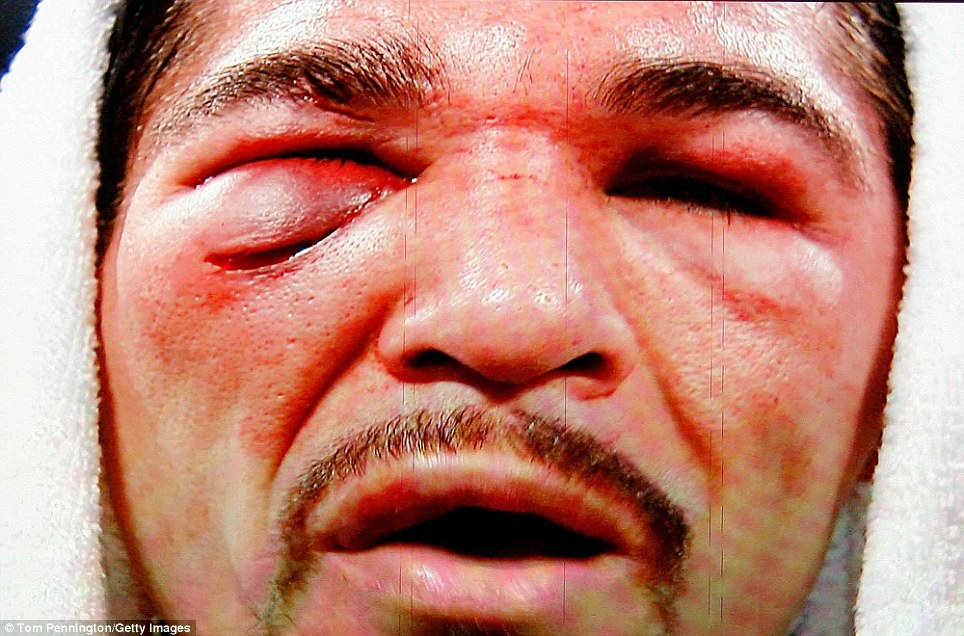 Antonio Margarito is seen on the giant screen as he is interviewed after he lost to Manny Pacquiao at Cowboys Stadium in Arlington, Texas