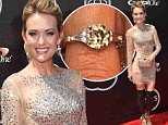 Mandatory Credit: Photo by REX Shutterstock (4903820d)\n Amy Purdy\n The ESPY Awards, Los Angeles, America - 15 Jul 2015\n \n
