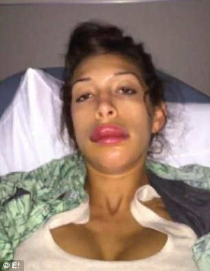 Plump out: The 24-year-old reality star posted this photo on Twitter after she had a horrific allergic reaction when she attemped to have another doctor do the procedure in January