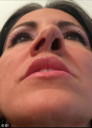 Trying to move on: Jessa had six surgeries on her nose, but each surgery made her nose worse and worse