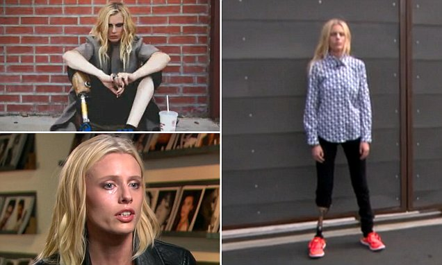 Lauren Wasser who had leg amputated is modeling once again with a prosthetic