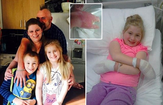 Girl, 10, left with third degree burns after picking up giant hogweed