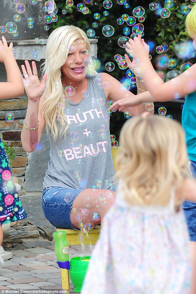 Ouch: Sixteen weeks on, Tori Spelling's arm looks just as painful as the day she fell onto a scalding hot grill at an LA teppanyaki restaurant.