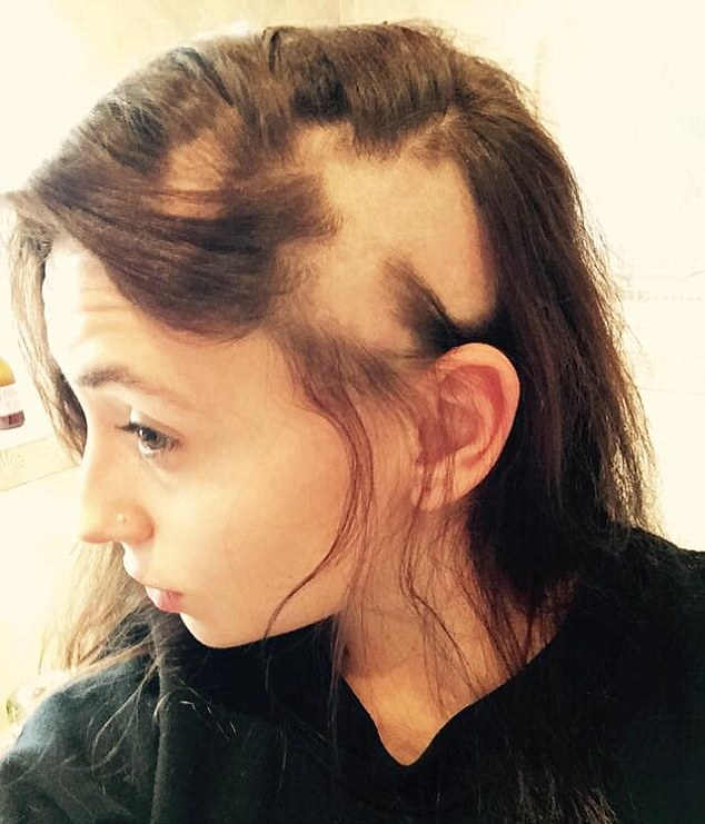Sian Pennant-Jones, 18, had all of her hair fall out in the space of three weeks after her exams in June 2013