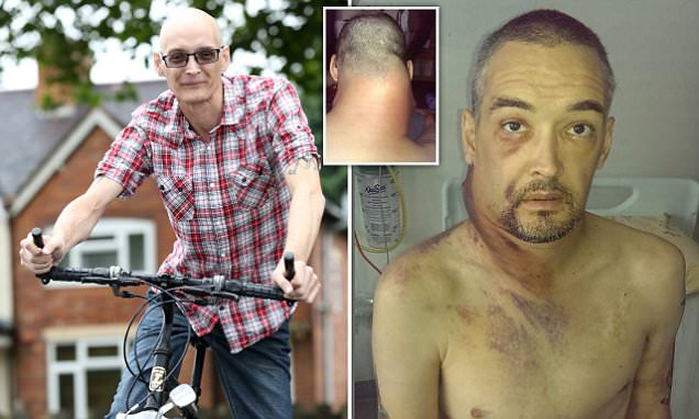 Bike crash saved father's life after a tumour the size of MELON grew days later