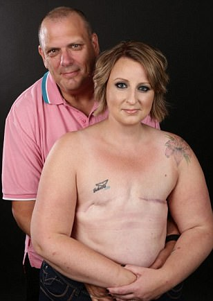 Breast cancer survivor poses topless after double mastectomy