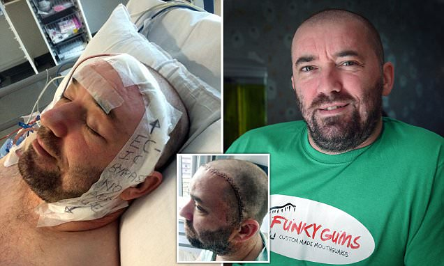 Liverpool man suffers over 100 mini STROKES in his sleep