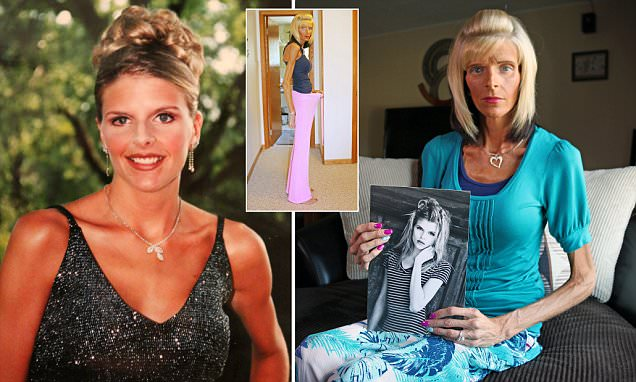 Lisa Brown is starving to death because of superior mesenteric artery syndrome