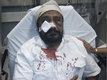 September 9, 2015 (Chicago, IL) ? On Tuesday evening, Inderjit Singh Mukker, a Sikh American resident in the Darien suburb of Chicago, was viciously assaulted after the assailant pulled up to his car yelling racial slurs, including, ?Terrorist, go back to your country, Bin Laden!? Mr. Mukker, a U.S. citizen and father of two, was on his way to the grocery store on S. Cass Avenue when the verbal taunting was initiated. Mr. Mukker turned onto Cass Avenue, but was repeatedly cut off by the driver. Mr. Mukker pulled over to the side of the road to let him pass, but the driver instead pulled in front of his car and aggressively approached Mr. Mukker?s vehicle. The assailant then reached into the car and repeatedly punched Mr. Mukker in the face, causing him to lose consciousness, bleed profusely and suffer a fractured cheekbone and a laceration to his cheek. He was rushed to the hospital, where he received six stitches, treatment for lacerations, bruising and swelling. The suspect is in cu