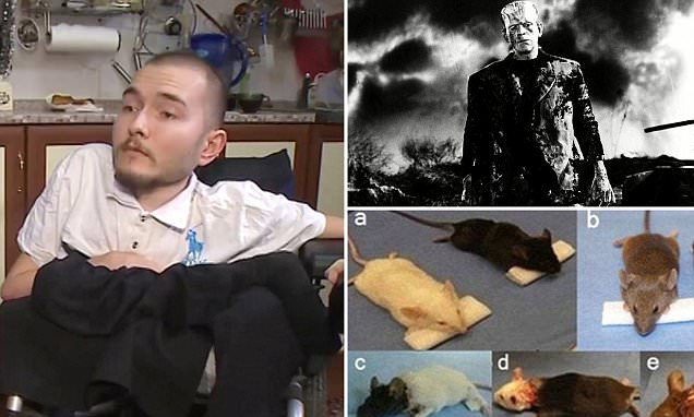 Chinese surgeon teams up with Sergio Canavero to perform head transplant in 2017