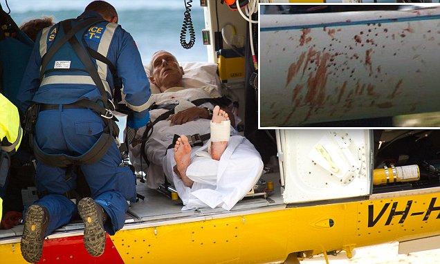 Black Head Beach shark attack survivor David Quinlivan