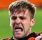Manchester Unitedís Luke Shaw grimaces after being injured during the Champions League Group B soccer match between PSV and Manchester United at Philips stadium in Eindhoven, Netherlands, Tuesday, Sept. 15, 2015. (AP Photo/Peter Dejong)