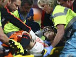 Medics prepare to carry Manchester Unitedís Luke Shaw off the pitch after being tackled by PSV's Hector Moreno, resulting in a double fracture of Shaw's right leg, during the Champions League Group B soccer match between PSV and Manchester United at Philips stadium in Eindhoven, Netherlands, Tuesday, Sept. 15, 2015. (AP Photo/Peter Dejong)