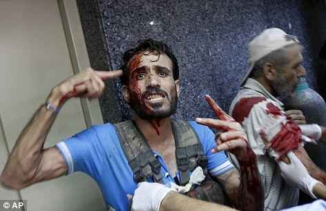 An Syrian injured fighter in Aleppo, in Syria on Friday. Rebel footholds in the city have been the target of weeks of Syrian shelling and air attacks