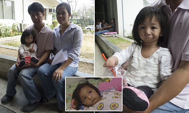 Filipino girl born with a sealed mouth goes under the knife