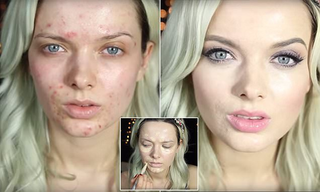 Beauty blogger My Pale Skin reveals how she conceals her severe adult acne