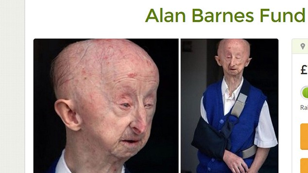 Screen-grabbed image taken from the Go Fund Me website of a page for Alan Barnes