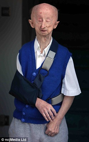 Richard Gatiss has admitted assaulting disabled pensioner Alan Barnes in an attack which shocked Britain