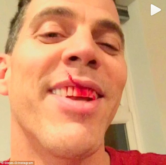 Playing the fool: Steve-O posted a shocking video of a knife falling on his face - after being encouraged by his girlfriend Stacey to take part in a dare