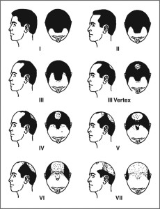 male pattern baldness or androgenetic alopecia