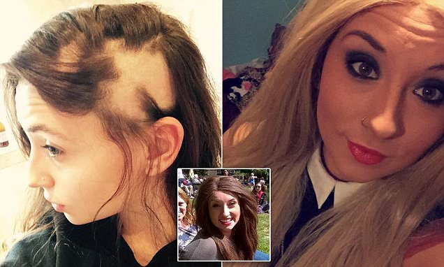 Alopecia sufferer embraces going bald after her hair fell out