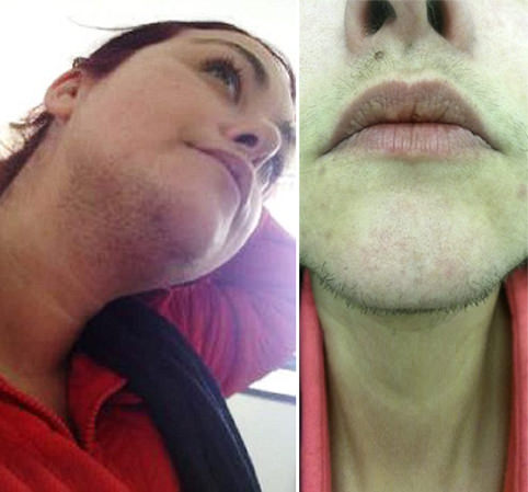 Bearded woman who is forced to shave three times a day is left devastated after NHS refuses laser treatment on her skin