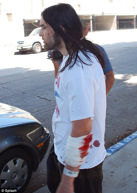 Injured: It is alleged his wife Nikki attacked him with a bottle and caused his bloody arm injury