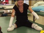 LINK TO GOFUNDME : https://www.gofundme.com/JulieDombo  Julie Quad Amputee Recovery  Robbery took her hands and feet, but not her spirit