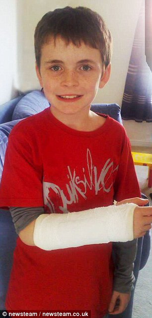 Injured: Schoolboy Jamie in a plaster cast he had fitted after Wayne Rooney broke his right wrist during his first Man Utd match