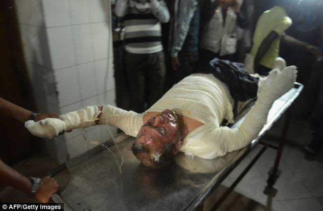 A Bangladeshi patient who suffered burns in the attack is taken to the Dhaka Medical College