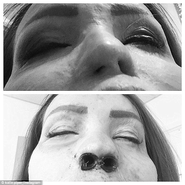 Before and after: Katie detailed the procedure on her Instagram page with the help of these photos