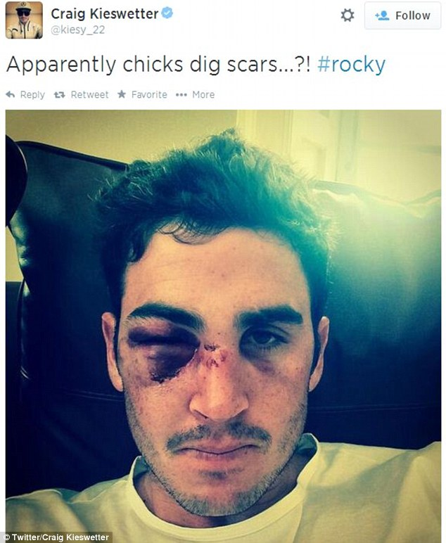 Sore one: Craig Kieswetter took to Twitter to show his horrific facial injury after a cricket ball hit him in the face