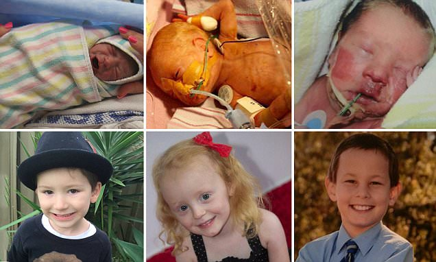 Mothers share heartwarming before and after stories of their premature babies