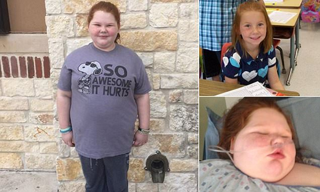 Texas teen with hypothalamic obesity begins treatment on new brain tumor