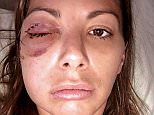 : IN TOUCH EXCLUSIVE PICS: VANDERPUMP RULES' KRISTEN DOUTE DEBUTS NEW FACE AFTER RECONSTRUCTIVE FACIAL SURGERY