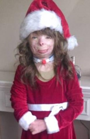 Severely burned New York girl Safyre Terry only wants cards for Christmas