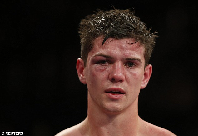 Campbell's face was battered and bruised following the first defeat of his professional boxing career