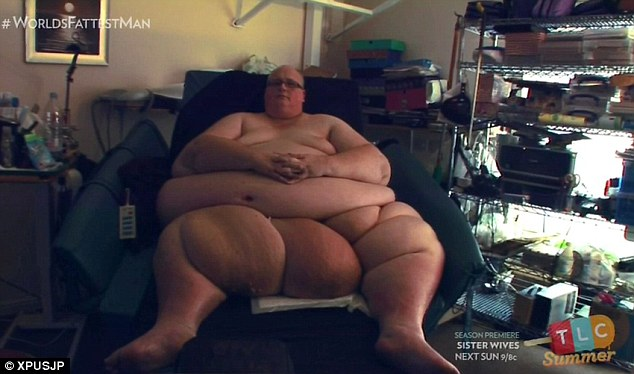 Paul Mason, 54, from Ipswich, Suffolk, lost 46 stone in five years after undergoing a gastric bypass in 2010