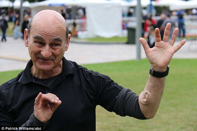Performance artist Stelarc showed off his scientifically-grown third ear which is located on his left-forearm