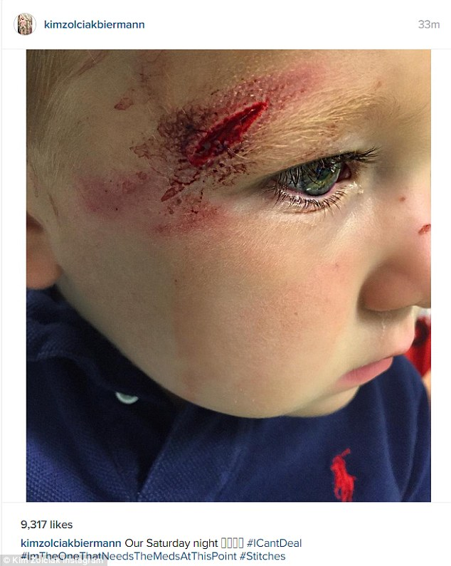 Ouch: Kim Zolciak took to her Instagram on Saturday night to share this gruesome photo of a cut above the eye of her nearly 21-month-old son Kane