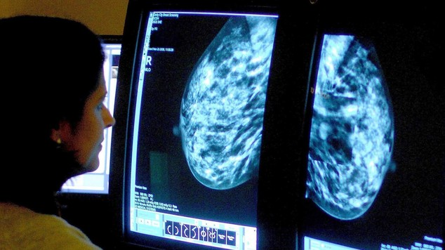 Traditional mammography sees all the breast tissue reproduced in a single image, which can hinder early detection of tumours