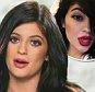 """KYLIE JENNER ADMITS TO DOING WHAT TO HER LIPS?!\nWill the """"Kardashians"""" star come clean about how she gets her pout so luscious and beautiful? Listen to what she says."""