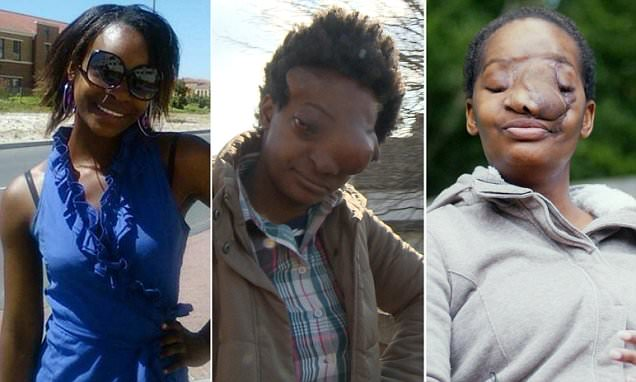 South African woman whose face was DEVOURED by cancer