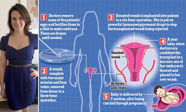 Womb transplants for ten UK women: Surgeons to be allowed to perform life-changing