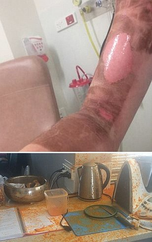 Thermomix user rushed to hospital with burns after machine EXPLODED