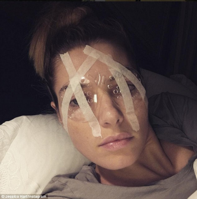 Slow recovery: The Australian model posted several pictures after her painful surgery