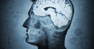 5 Elements of Western Diet Linked To Alzheimer's Disease
